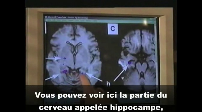 <span style='color:black;font-size:14px;'>BBC, Tomorrow's World</span> <span style='color:#DA5725;font-size:26px;'>Neurologie et personnalité multiple</span>